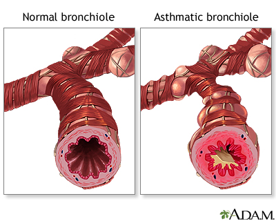 Bronquiolo normal vs. bronquiolo asmático
