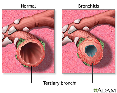 Bronchitis and Normal Condition in Tertiary Bronchus
