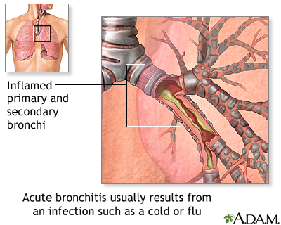 Cause of Acute Bronchitis