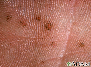 Basal cell nevus syndrome - close-up of palm