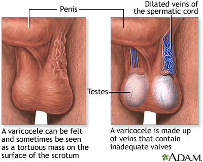 Varicocele