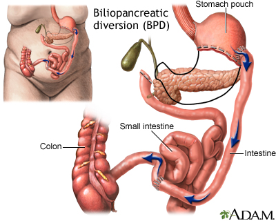 Biliopancreatic diversion (BPD)