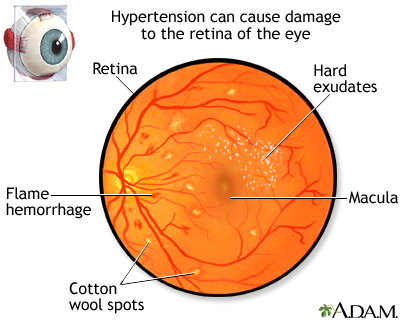 Hypertensive retinopathy