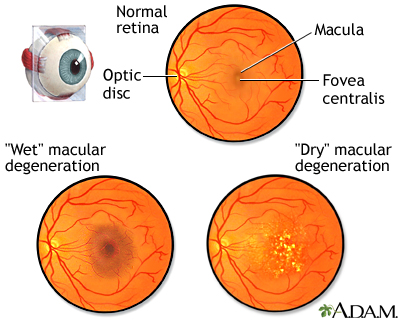 Macular degeneration
