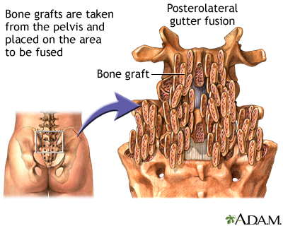 Procedure: Posterolateral gutter fusion