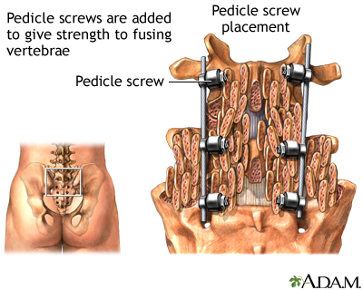Pedicle screw