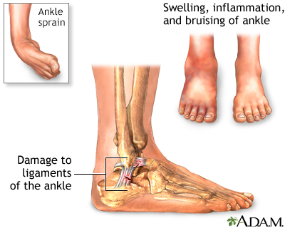 Ankle sprain