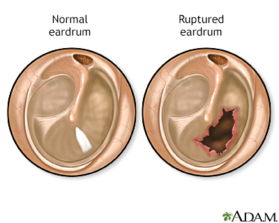 Ruptured eardrum