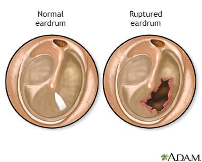 Ruptured eardrum