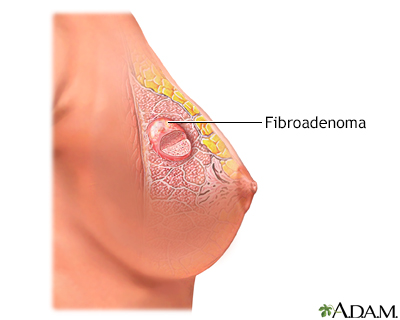 Fibroadenoma