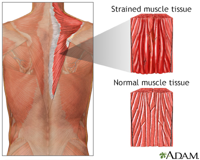 Muscle strain
