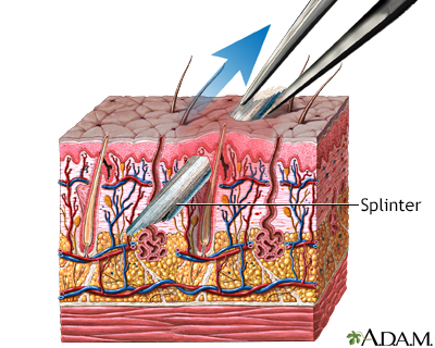 Splinter removal