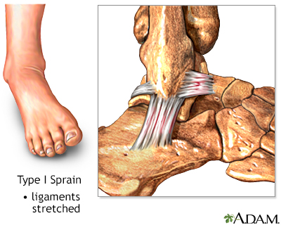 Type I ankle sprain