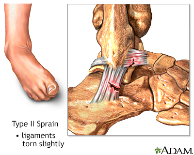 Type II ankle sprain