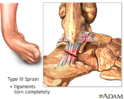 Type III ankle sprain