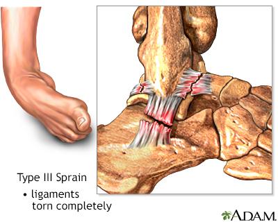 Type III ankle sprain