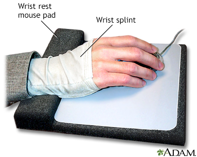 Wrist splint