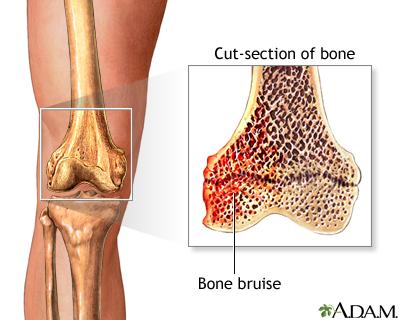 Hematoma óseo