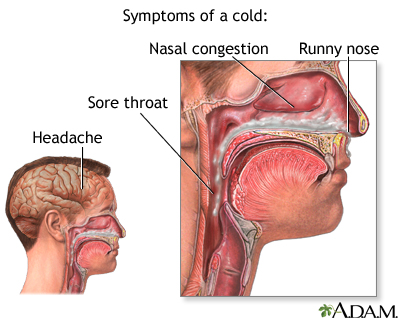 Cold symptoms