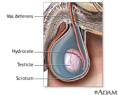 Hydrocele