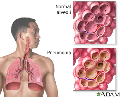 Pneumonia