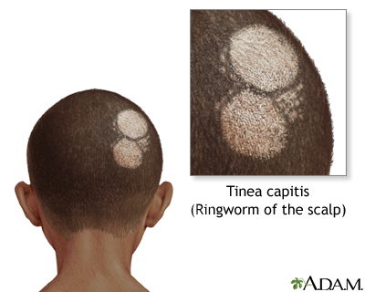 Ringworm of the scalp