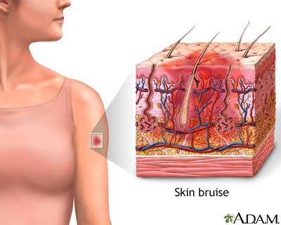 Hematoma de la piel