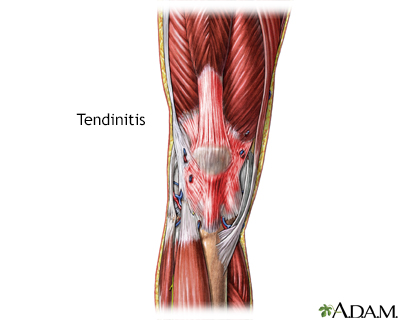 Tendinitis
