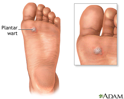 Plantar wart