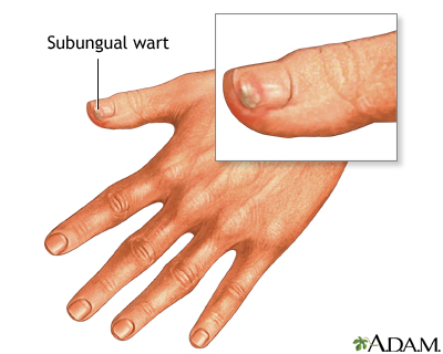 Subungual wart