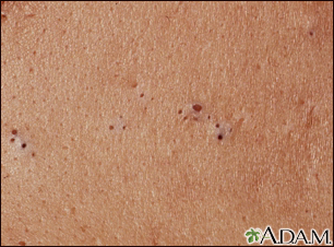 Blackheads (comedones)