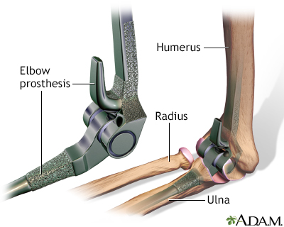 Elbow prosthesis