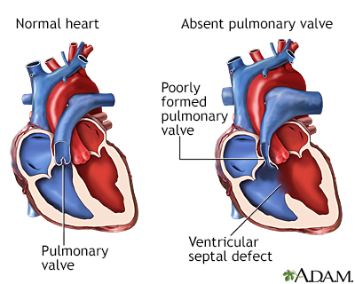 Absent pulmonary valve