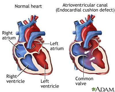 Canal auriculoventricular (defecto de relieve endocárdico)
