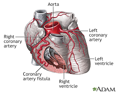 Fístula de la arteria coronaria