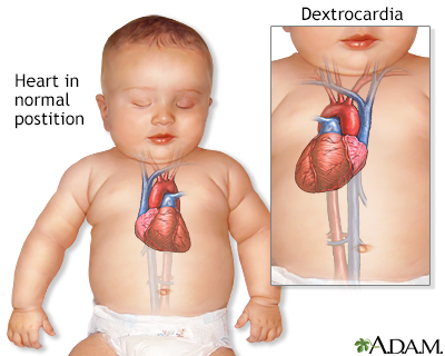 Dextrocardia