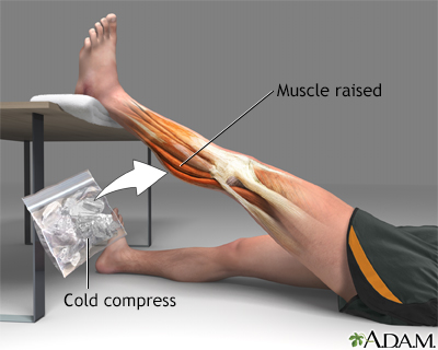 Treatment for leg strain