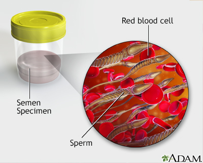 Blood in semen