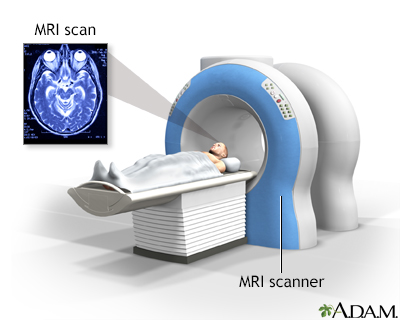Head MRI