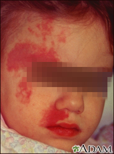 Port wine stain on a child's face