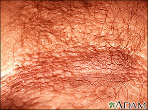 Acanthosis nigricans - close-up