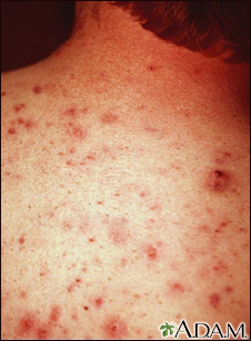 Acne, vulgaris on the back