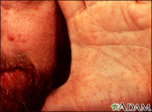 Basal cell nevus syndrome - face and hand