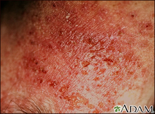 Dermatitis, close-up of allergic contact