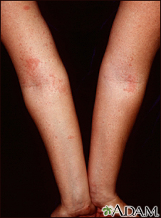 Dermatitis, atopic on the arms