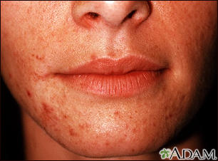 Dermatitis, perioral