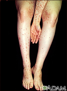 Dermatitis, herpetiformis on the arm and legs