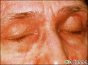 Dermatomyositis, heliotrope eyelids