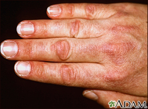 Dermatomyositis, Gottron's papule