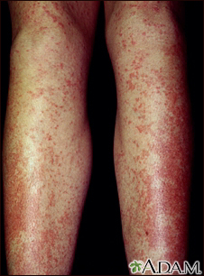 Drug rash, Tegretol